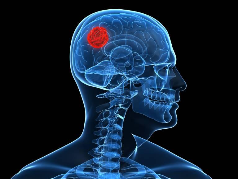 sintomas de un cancer cerebral